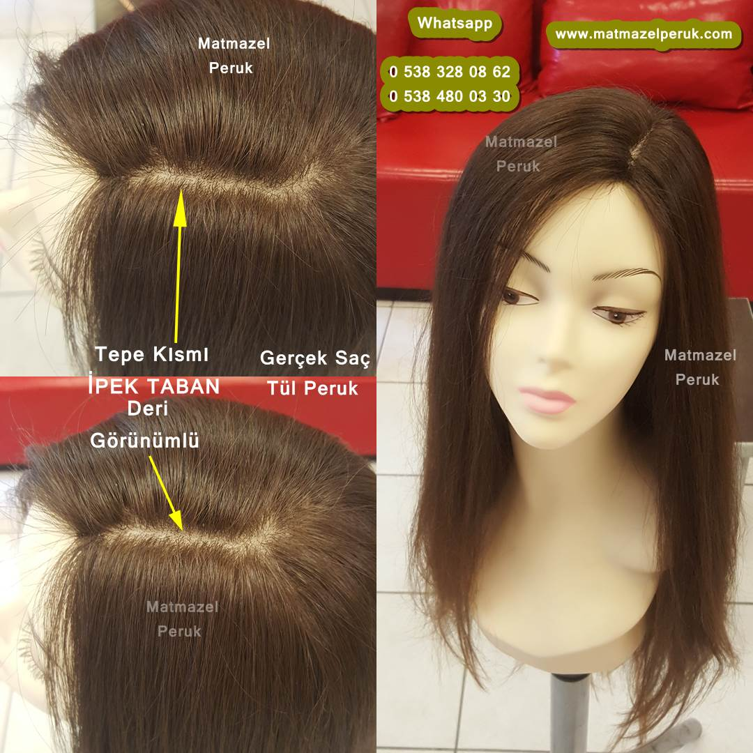 alopesi peruk, kemoterapi peruk