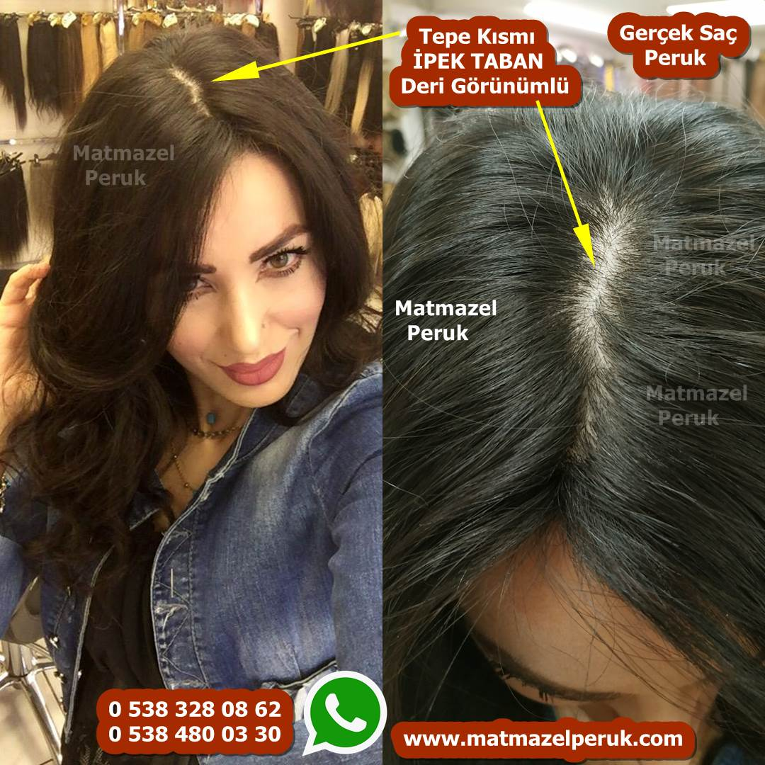 medikal peruk doğal peruk gerçek saç peruk