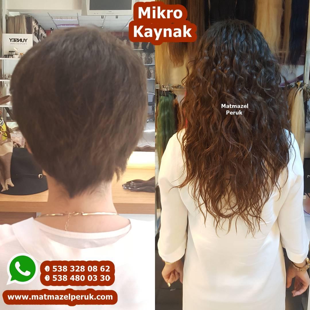 mikro kaynak görünmeyen kaynak saç kaynak merkezi ankara