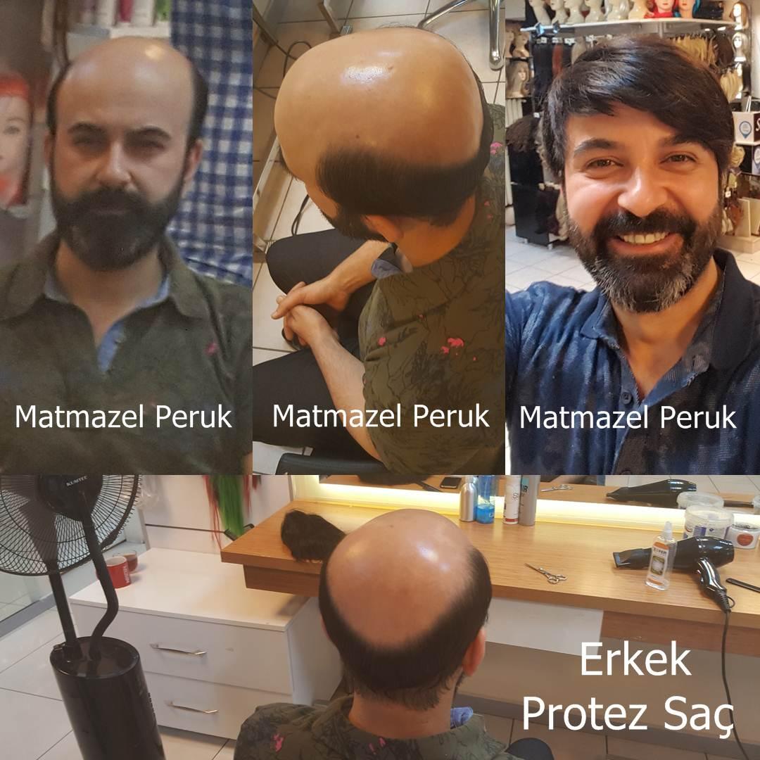 ankara protez saç