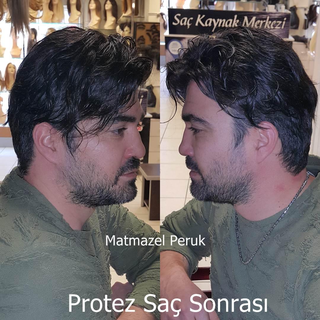 erkek protez saç ankara protez saç