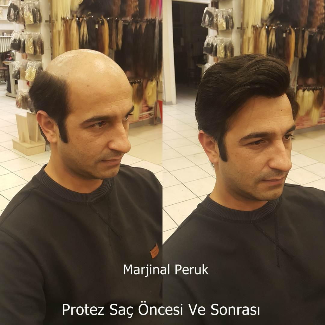 ankara protez saç izmir caddesi protez saç
